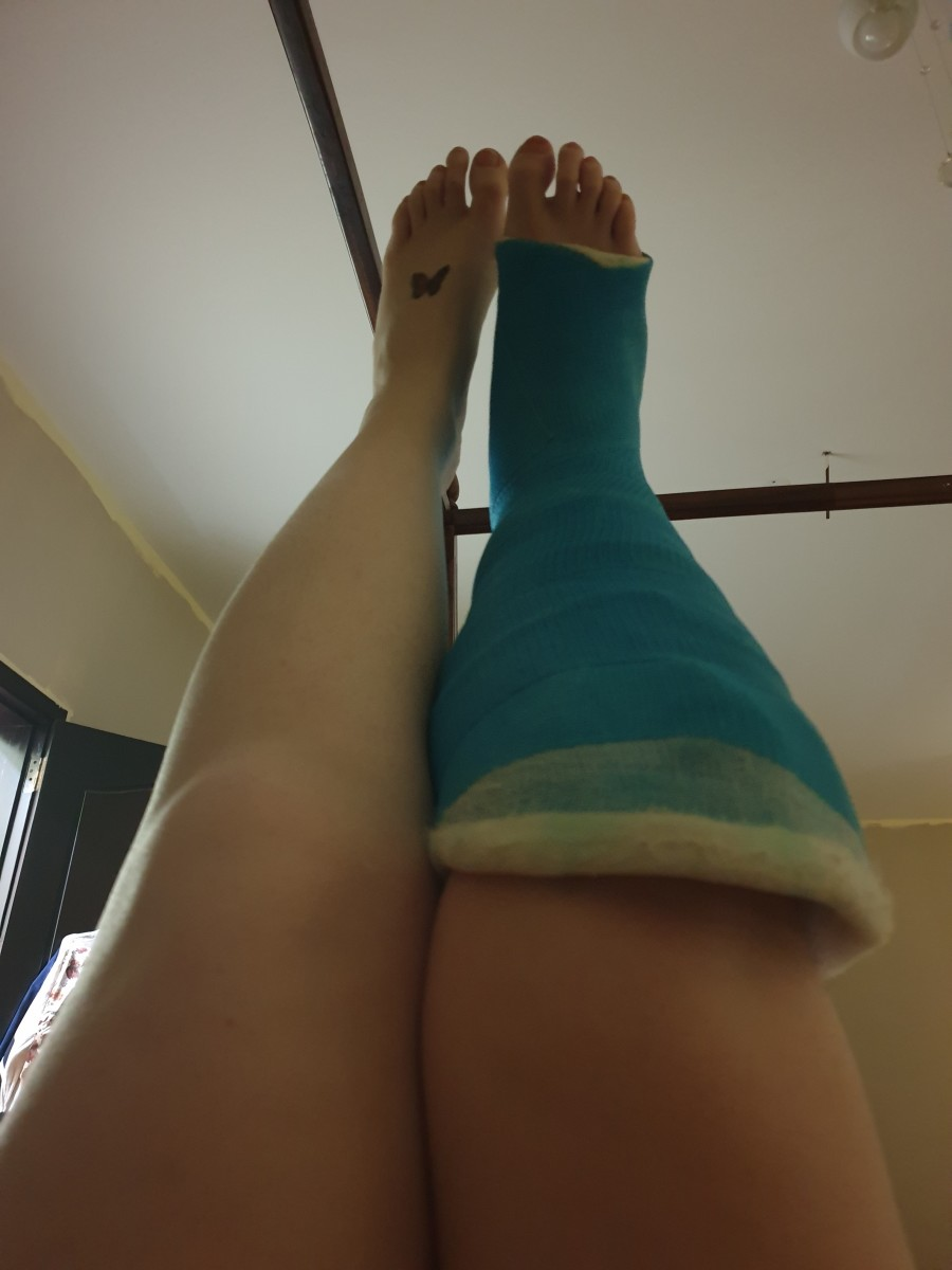 fractured-leg-recovery