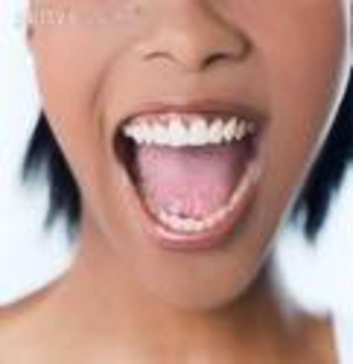 homo Sapiens female demonstrating argumentative technique...definitely not an NHS dentist.  getty images photo