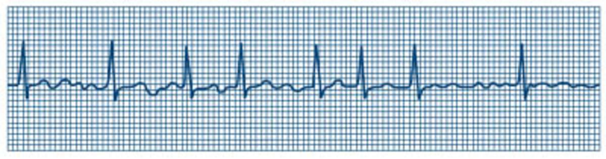 Atrial Fibrillation on EKG