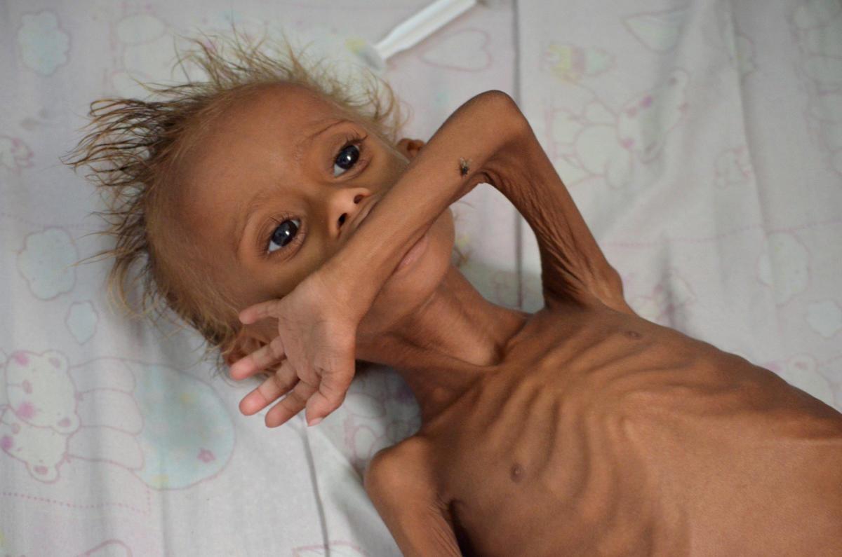 A malnourished child (underweight).