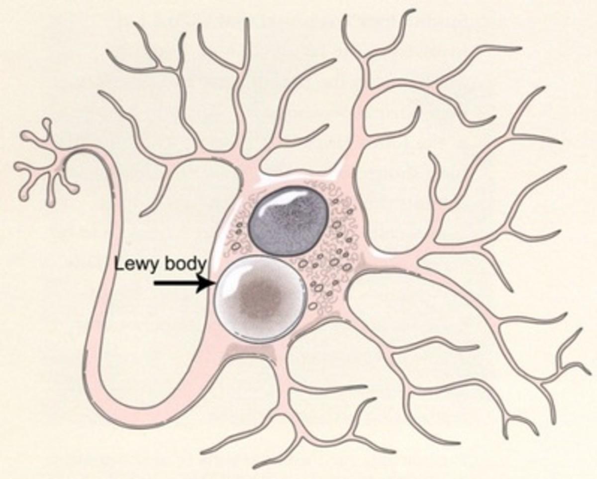 Lewy bodies dementia and parkinsons disease.