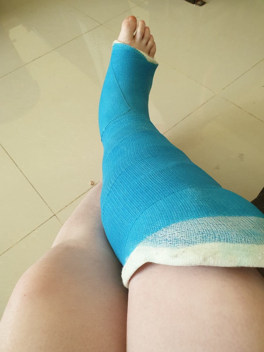 bending-your-knee-again-after-a-knee-fracture