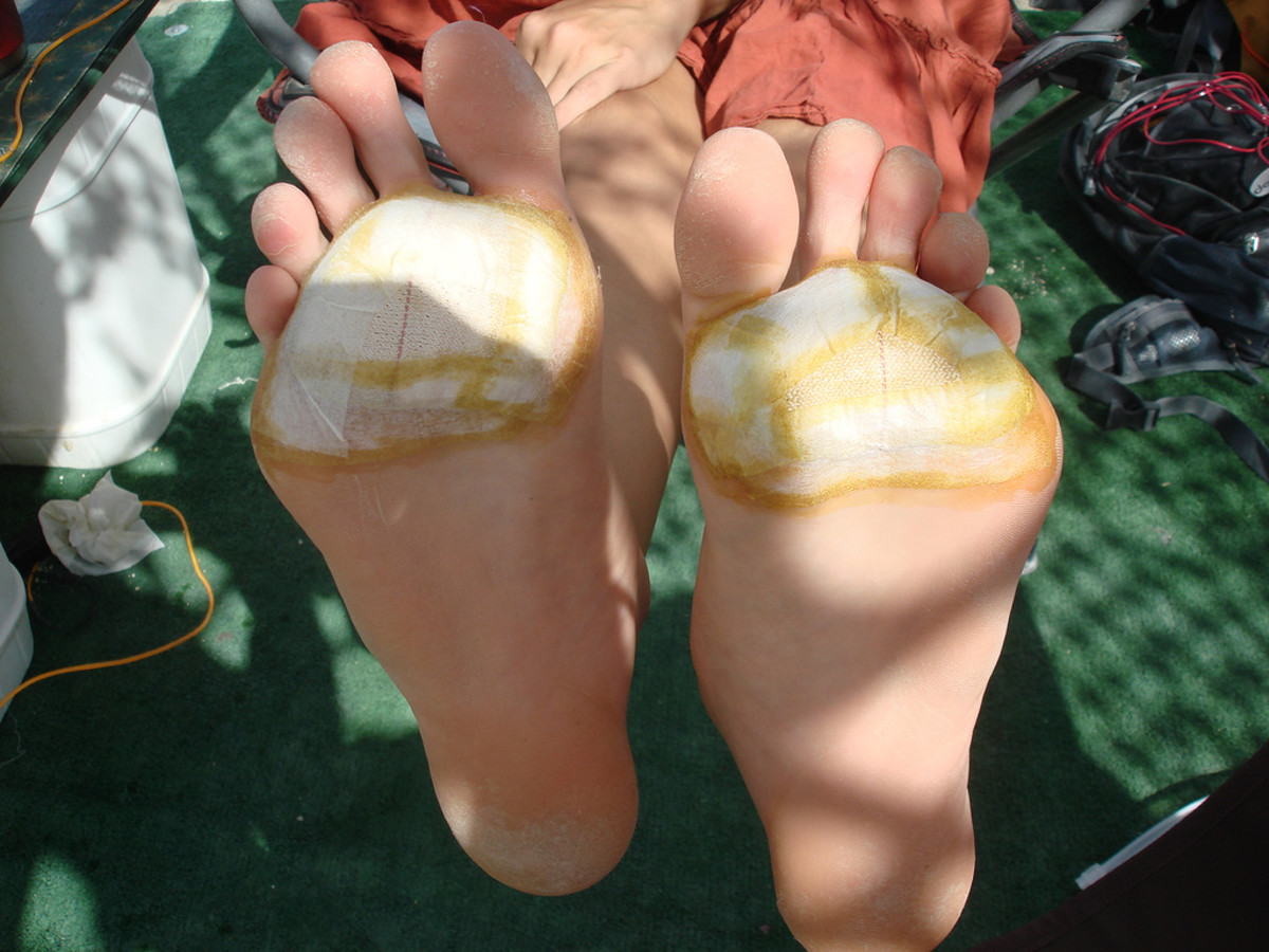 Blistered and patched feet from walking around the playa.