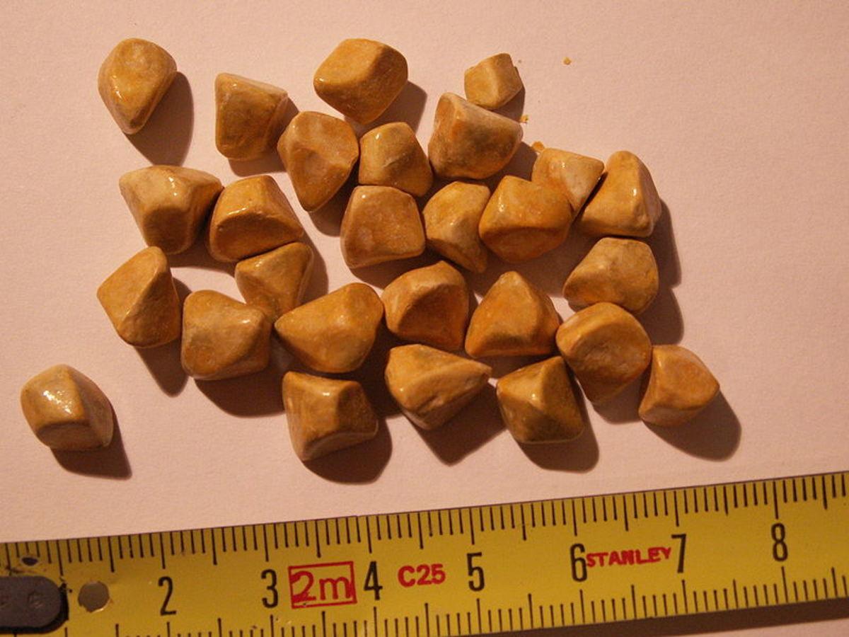 Cholesterol stones