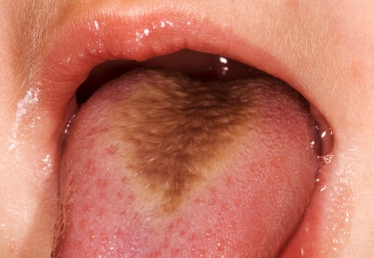 "Causes, Treatments, and Pictures of Black & White ""Hairy Tongue"""
