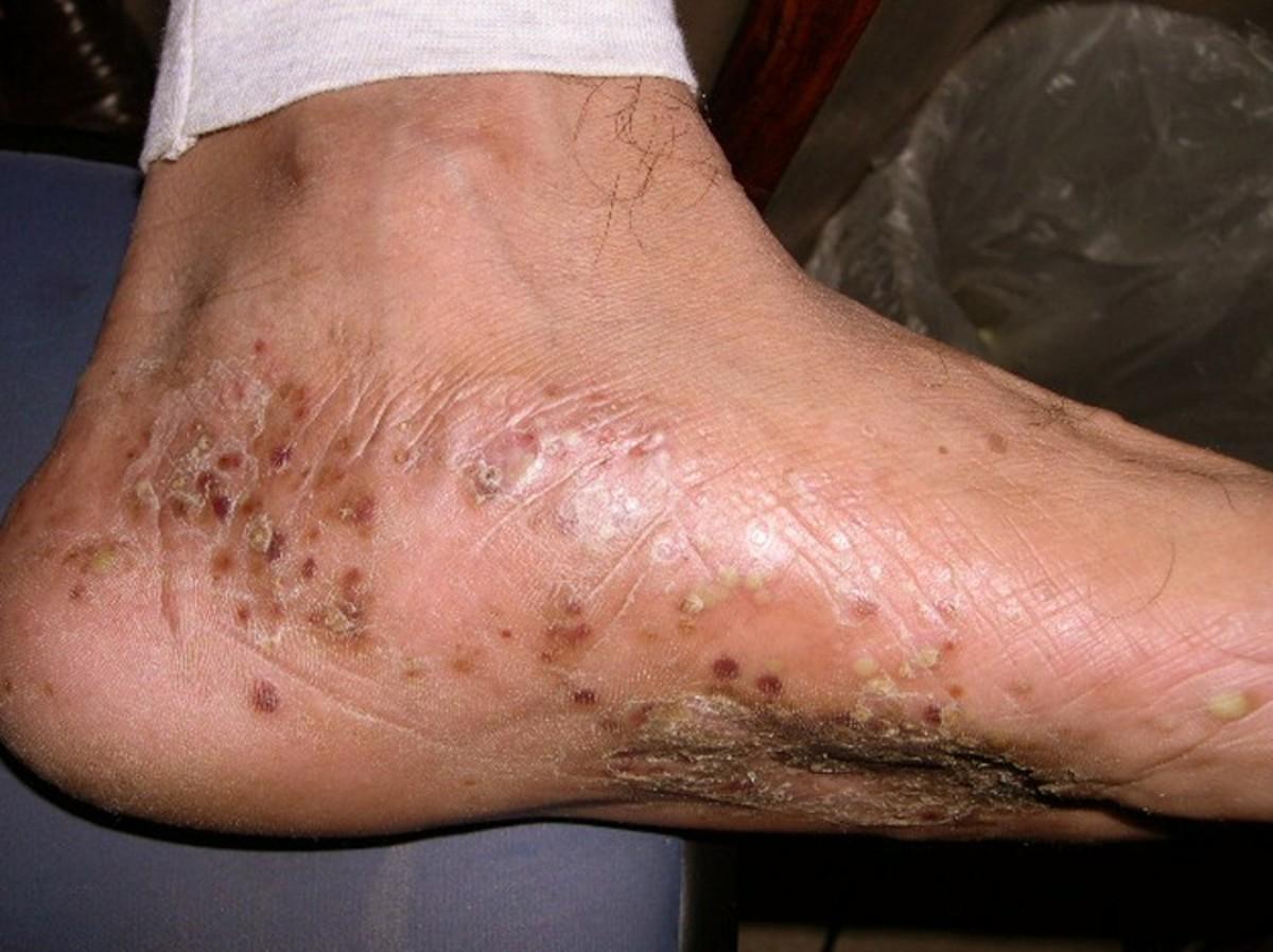 Pompholyx - Pictures, Symptoms, Treatment, Diagnosis, Causes, Cure