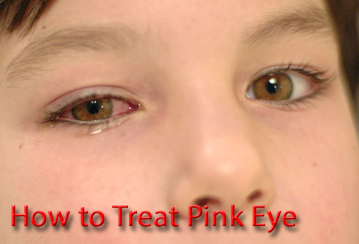 How to Treat Pink Eye (With Photos)