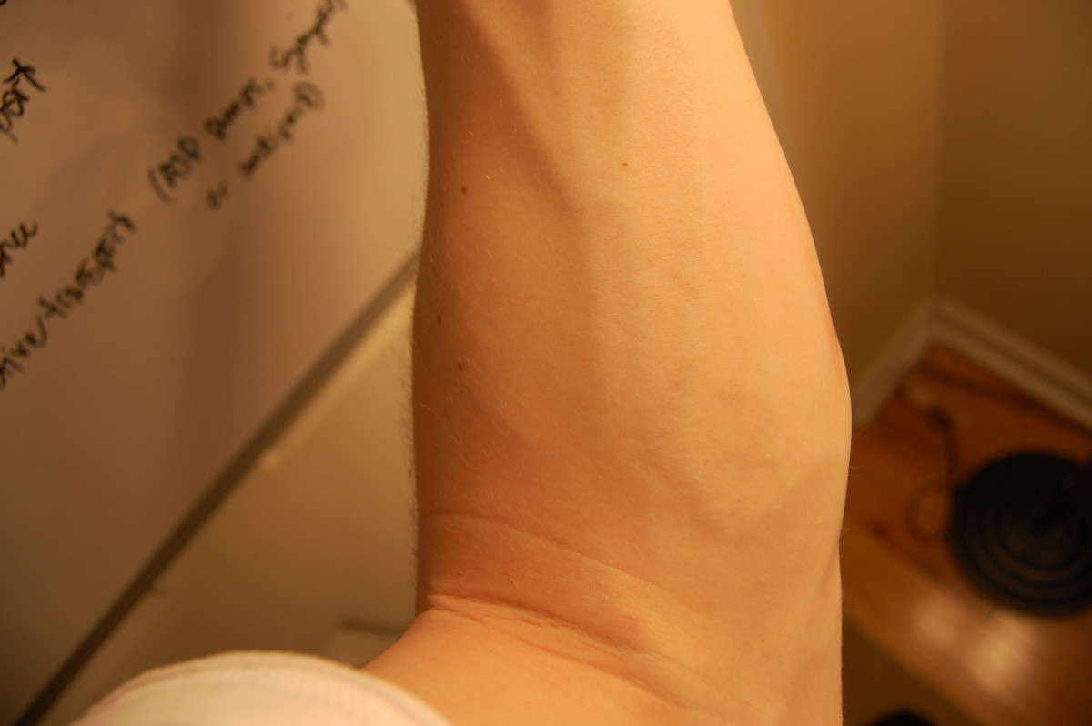 after ten laser treatments on left arm
