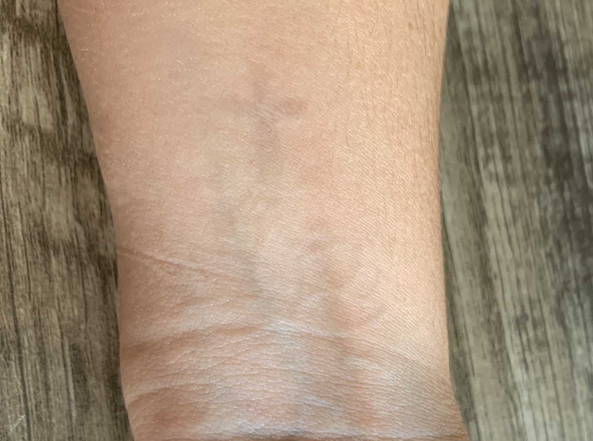 As mentioned, I did not finish the treatment and like the faded look. This photo is after 11 total treatments and 2 years post laser treatment of any kind.