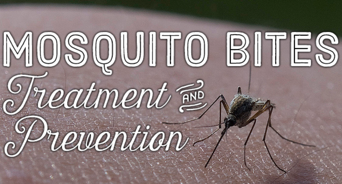 How to treat and prevent mosquito bites.