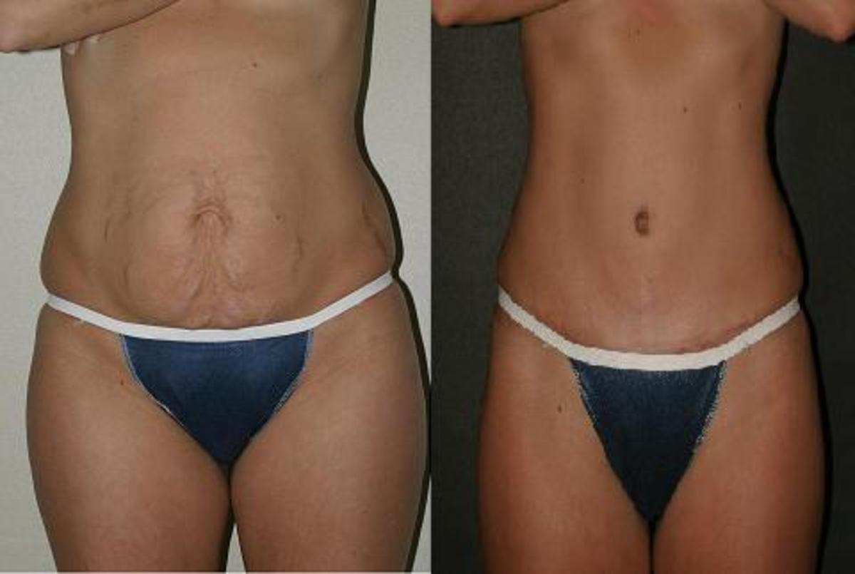 Mini Tummy Tuck (Partial Abdominoplasty): Procedure, Recovery Time, and Cost