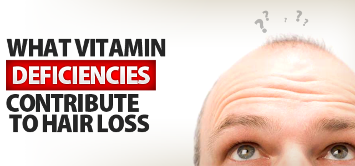 16 Vitamin Deficiencies that Lead to Hair Loss