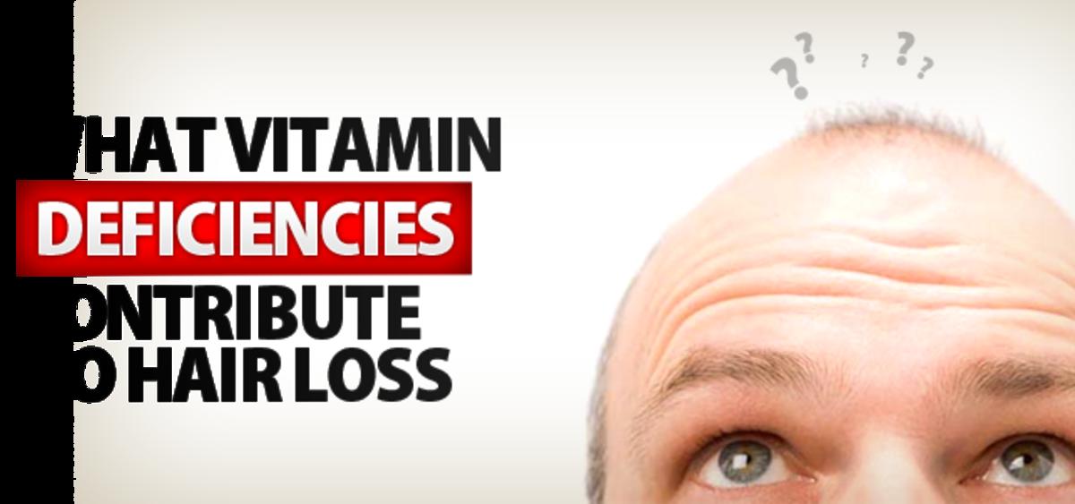 16 Vitamin Deficiencies That Lead To Hair Loss