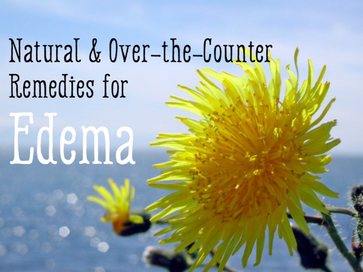 Over-the-Counter and Natural Diuretics and How They Affect Edema