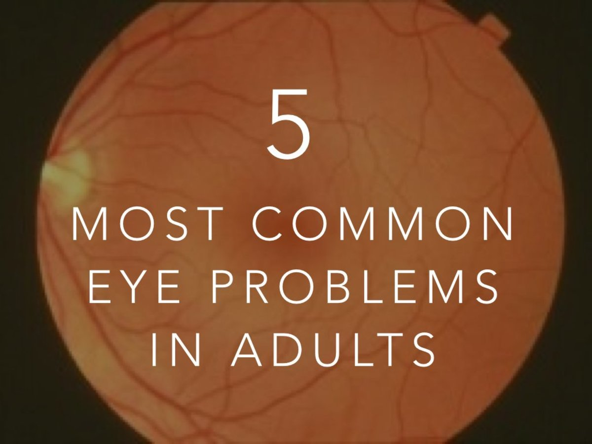 The Five Most Common Eye Problems in Adults