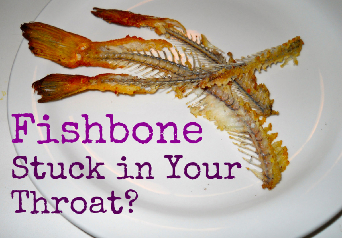 How to Remove a Fish Bone Stuck in Throat