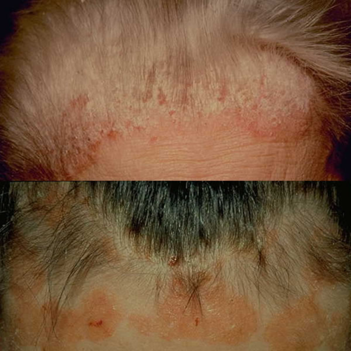 Natural Scalp Psoriasis Treatment With Tea Tree Oil and Olive Oil