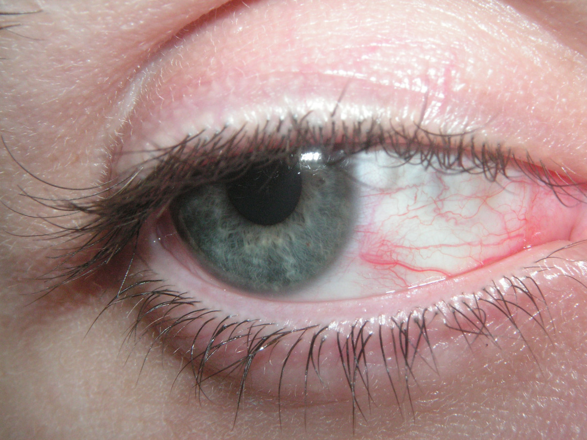 How To Stop Your Eyes Being Sore, Red Or Itchy