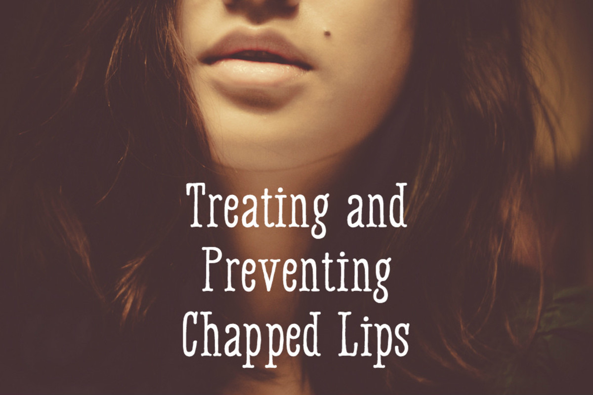 How to Treat and Prevent Chapped Lips