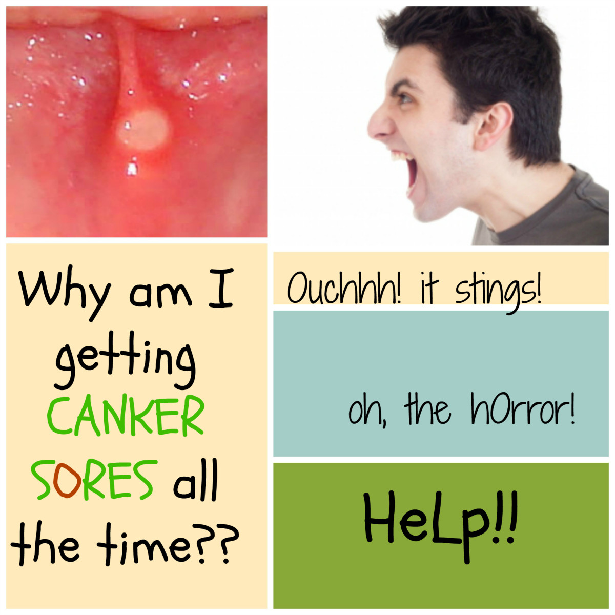 Common Causes of Canker Sores