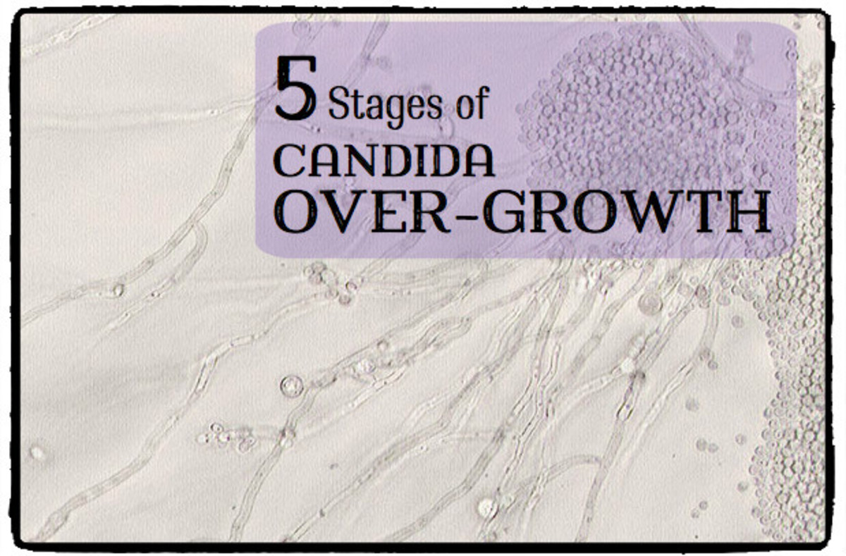 The 5 Stages of Candida Overgrowth