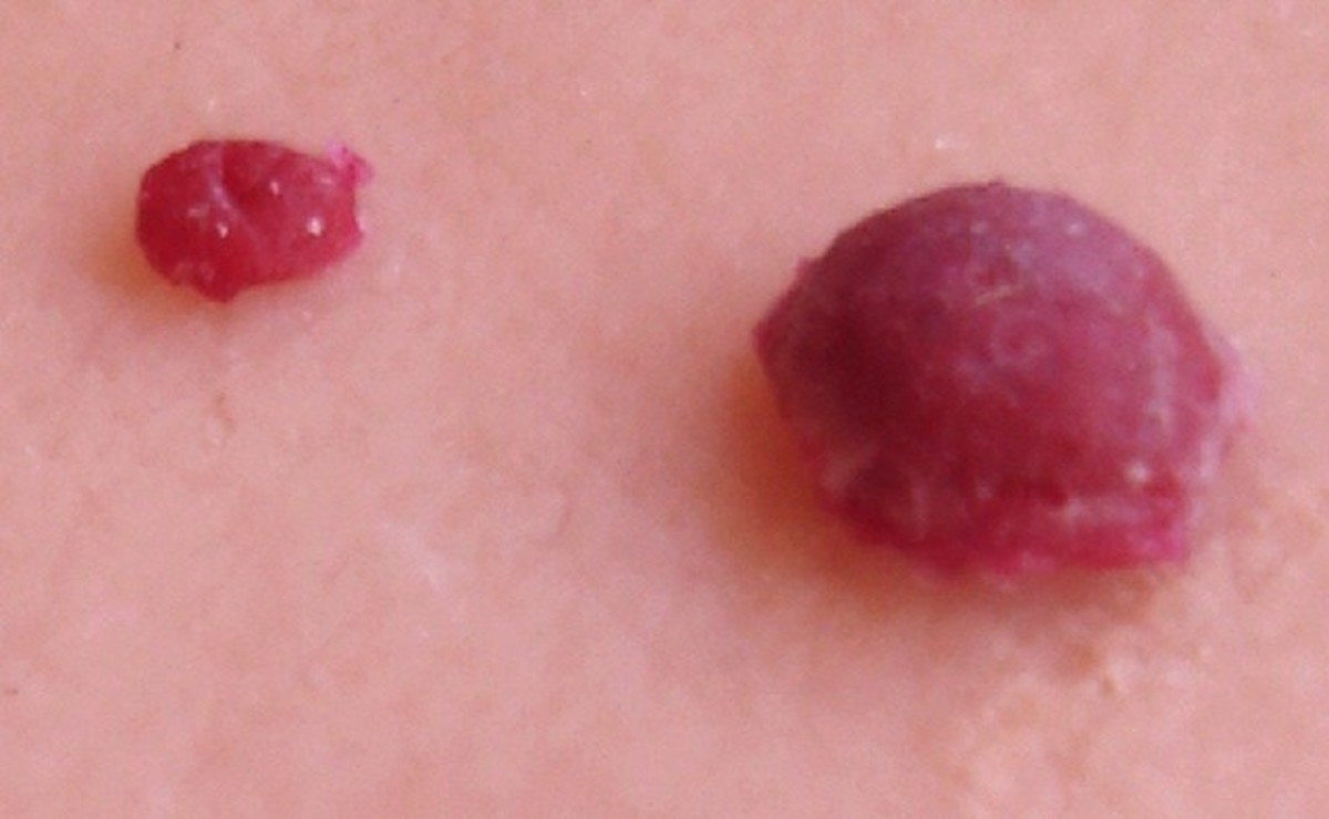 Cherry Angiomas - Pictures, Symptoms, Causes, Treatment, Removal