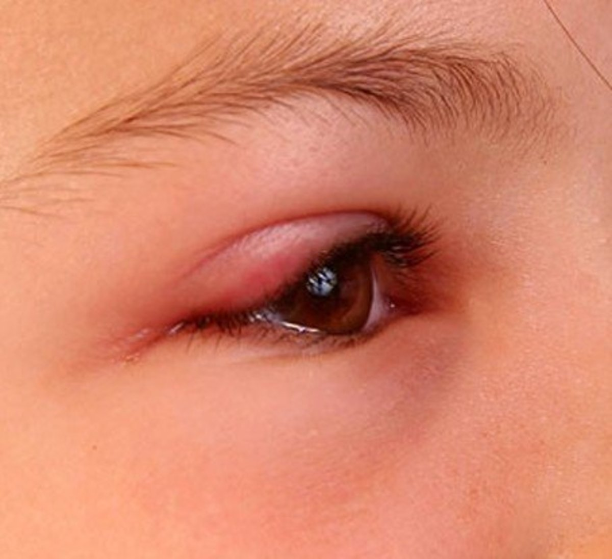 Swollen Eyelid - Symptoms, Treatment, Pictures, Causes