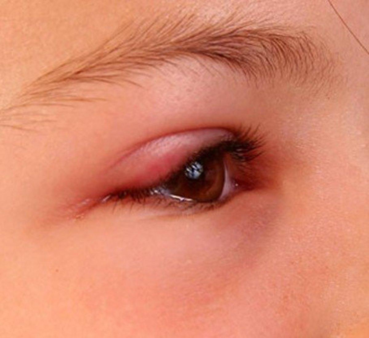 swollen-eyelid