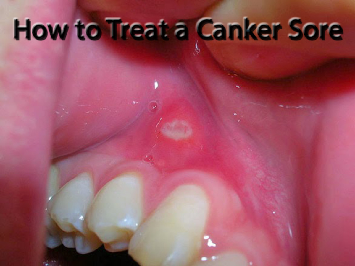 A sore in the mouth can be mildly irritating or downright painful. Get rid of the canker sore quickly with these tricks.