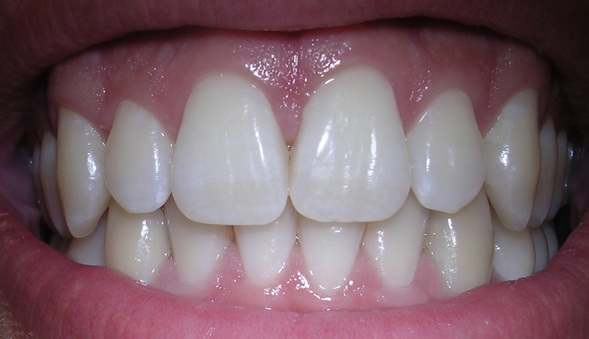 A healthy smile with pink gums.
