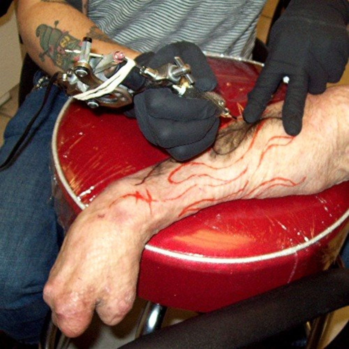 Tattoos on Burned, Scarred, or Grafted Skin