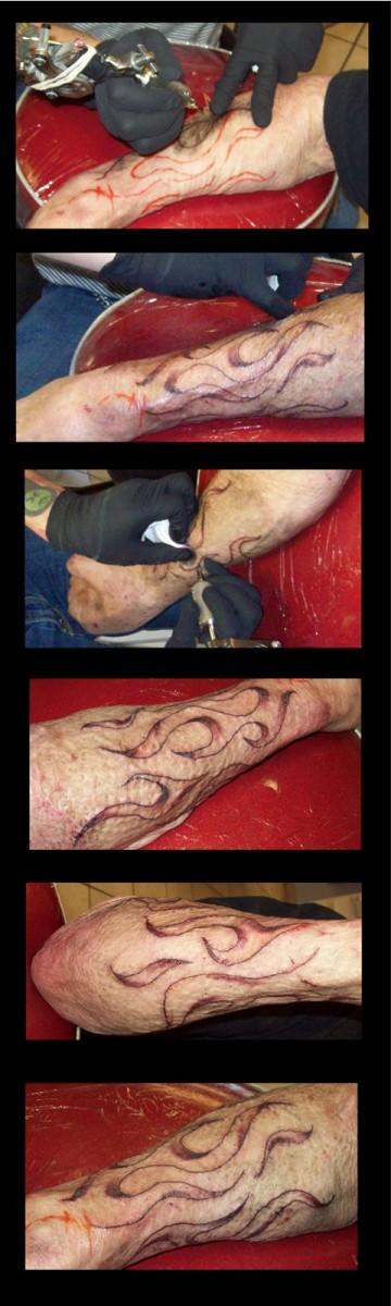 tattoo-burn-scars