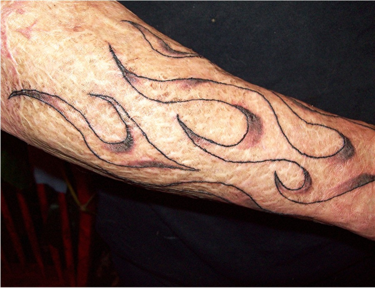 Scott's tattoo one day after the first visit. His grafted skin bruised from the shading, but not the outline.