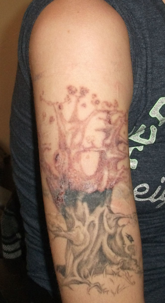 I've decided to laser off the entire tree! This is a few days after getting the laser. (Notice how faded the barbed wire is too! That is just from one session.)