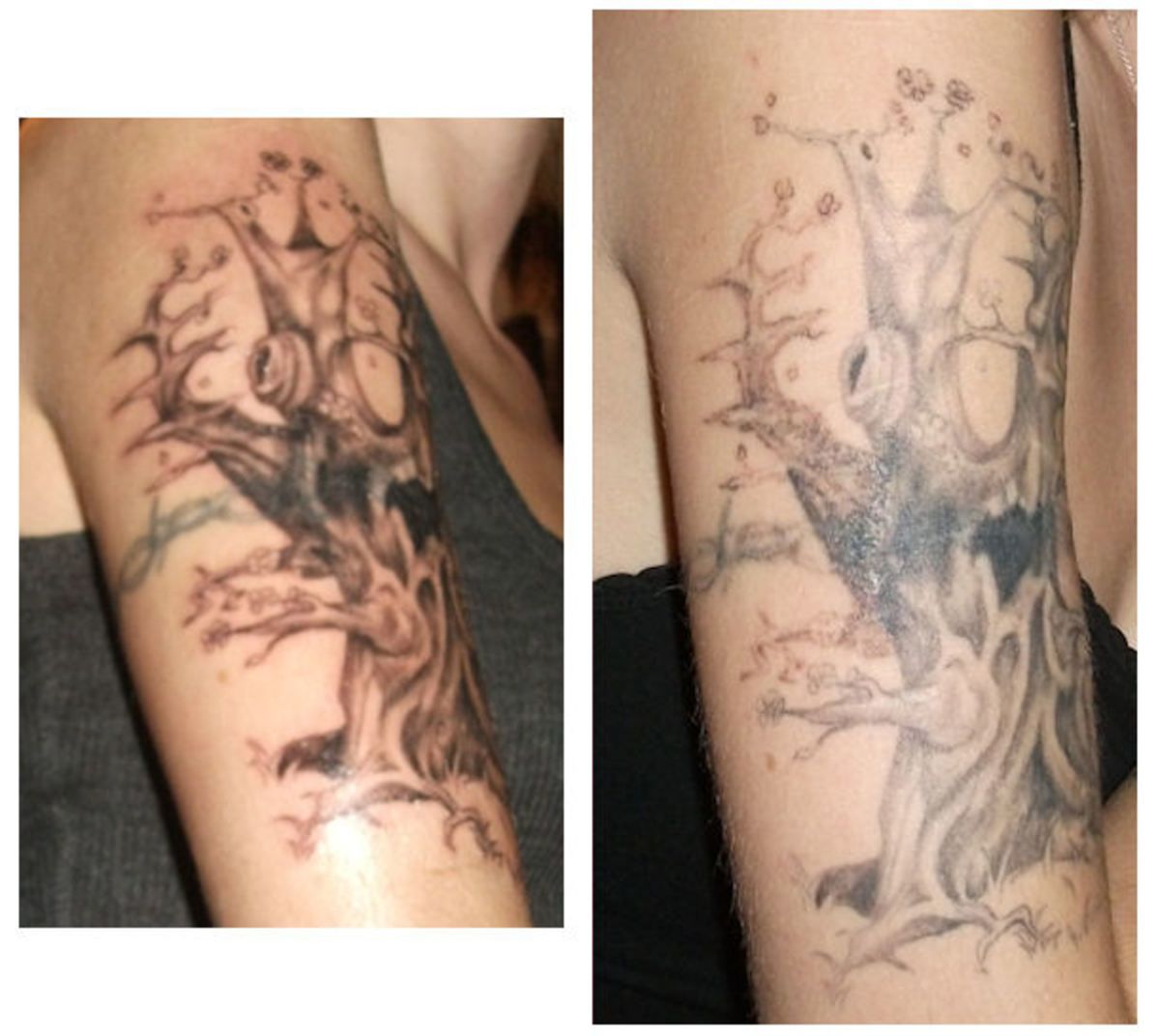 Side by side comparison. The difference is awesome. On the left is the first day I got the tat, on the right is about 2+ months of constantly using my creams and doing laser treatment.