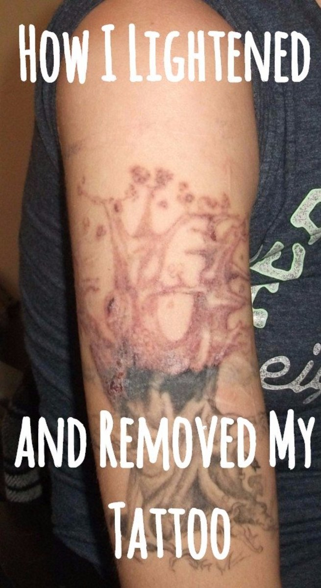 My Experience Lightening and Removing My Tattoo at Home