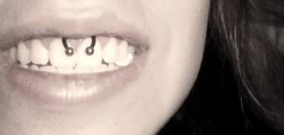 A smiley piercing of the upper frenulum.
