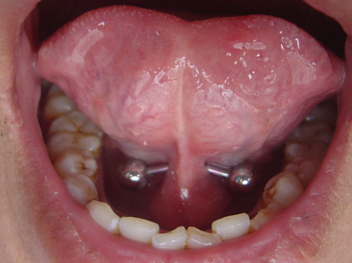 A tongue web piercing can be easy, if there is enough tissue to pierce.