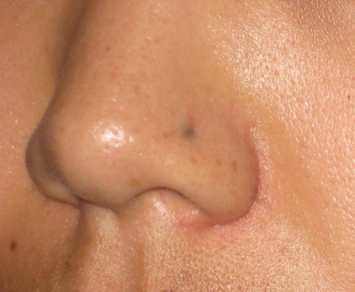 "The skin around the site of my piercing turned gray. This is known as ""argyria."""