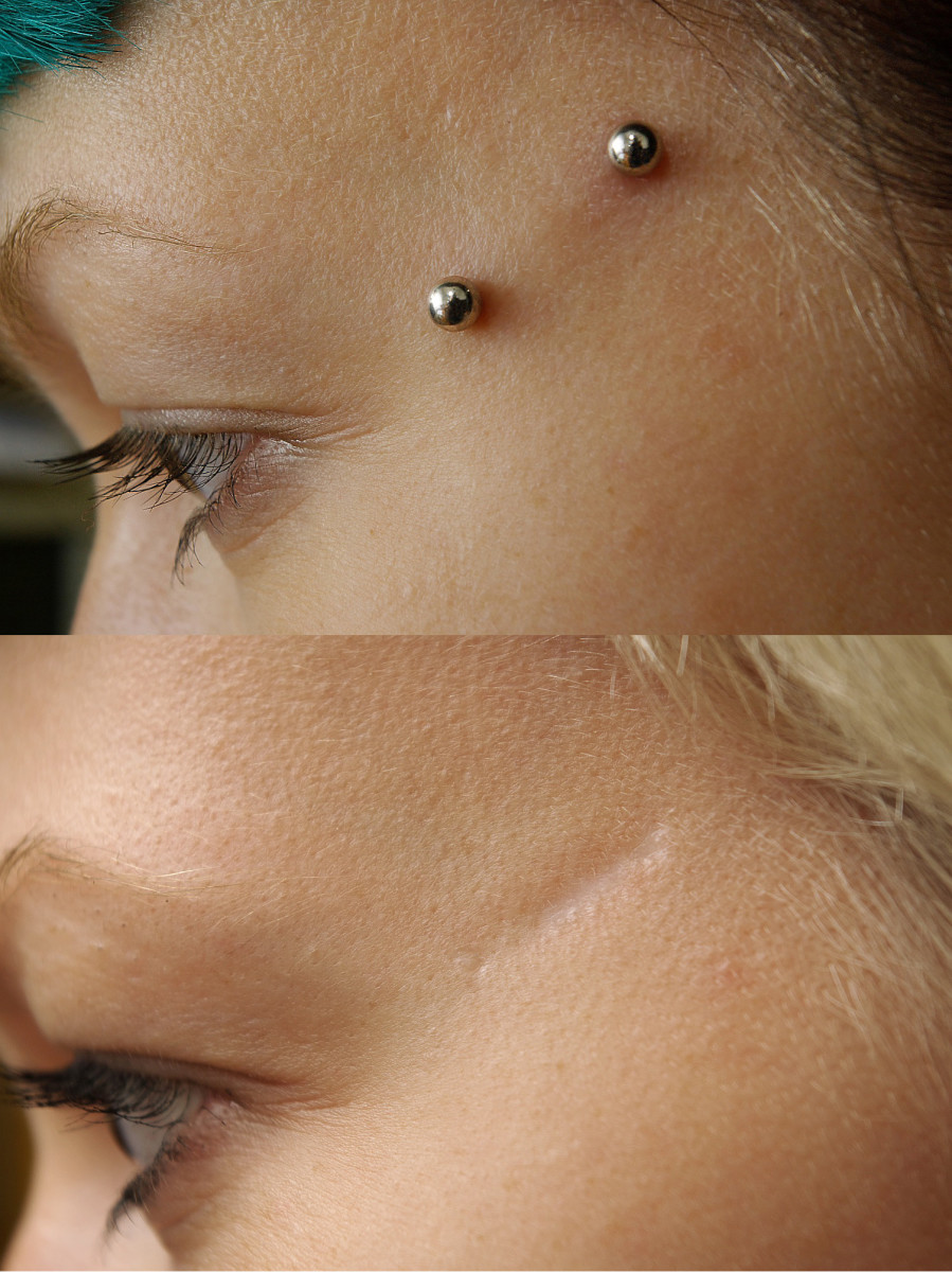 Face dermal piercing