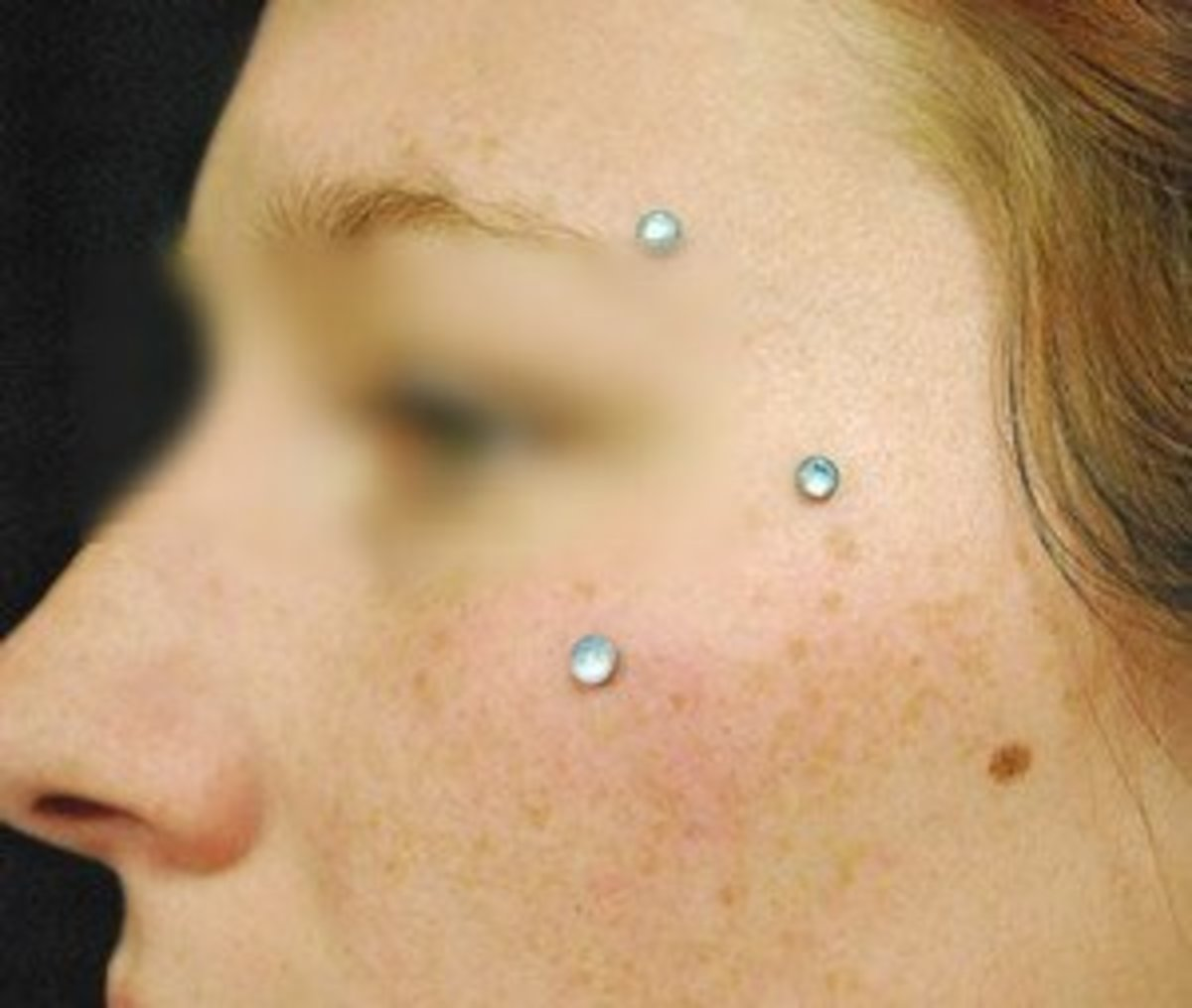 Cheekbone piercing