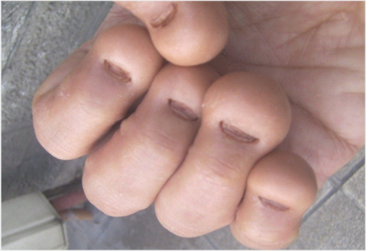 For some people nail biting is severe enough to cause nerve damage or
