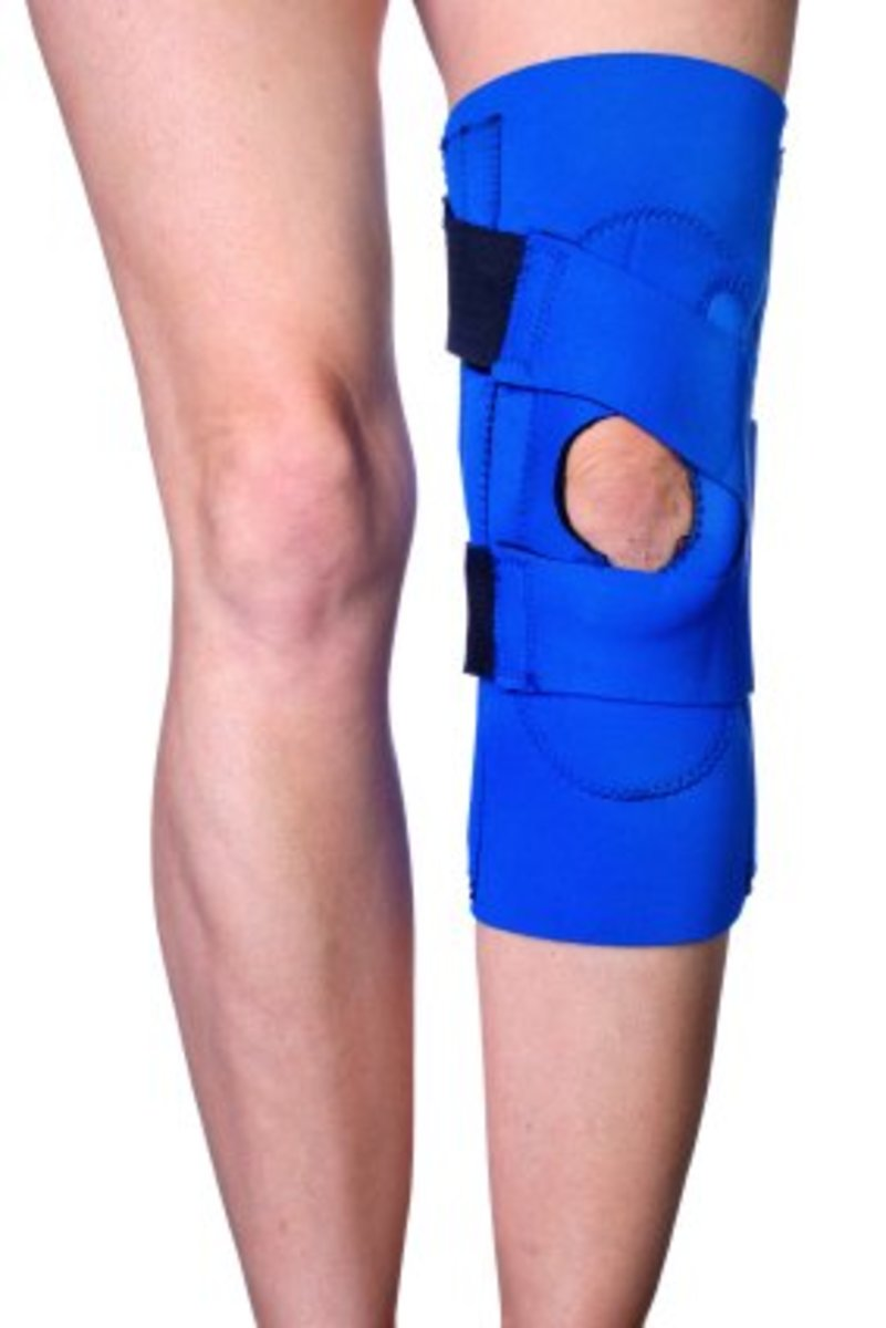 Help! I've Dislocated My Kneecap—How I Manage