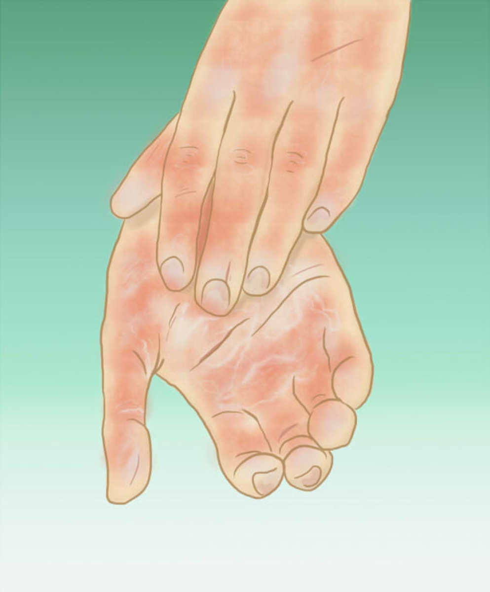If you have red blotchy hands or feet, you may have bad circulation.