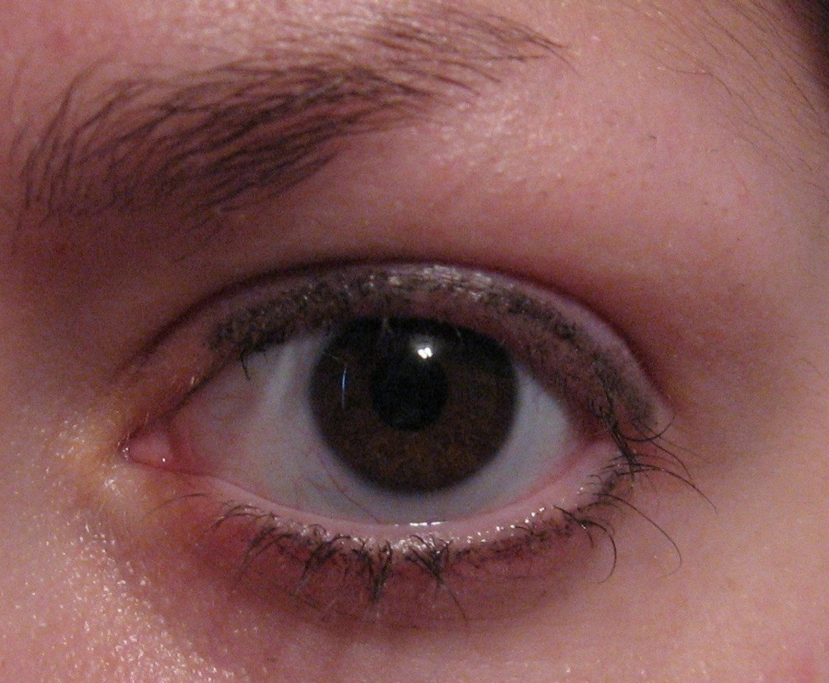 My trichotillomania—pulling out my eyelashes.