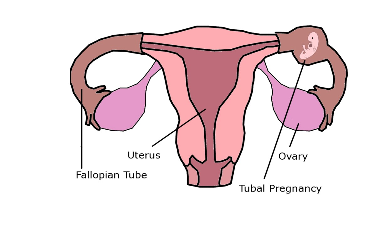 When an embryo implants in the Fallopian tube, the pregnancy is not viable and threatens the life of the mother.