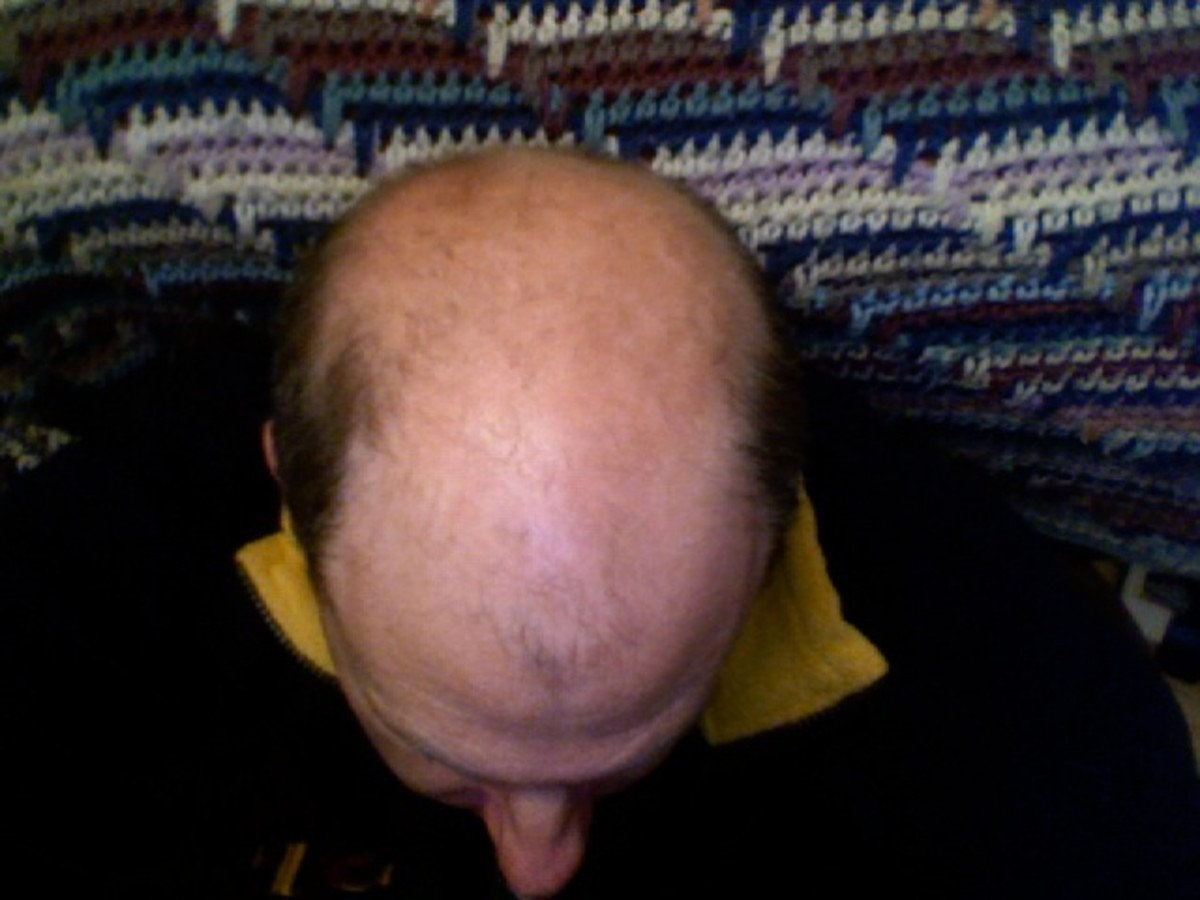 Losing Your Hair and What to do About it