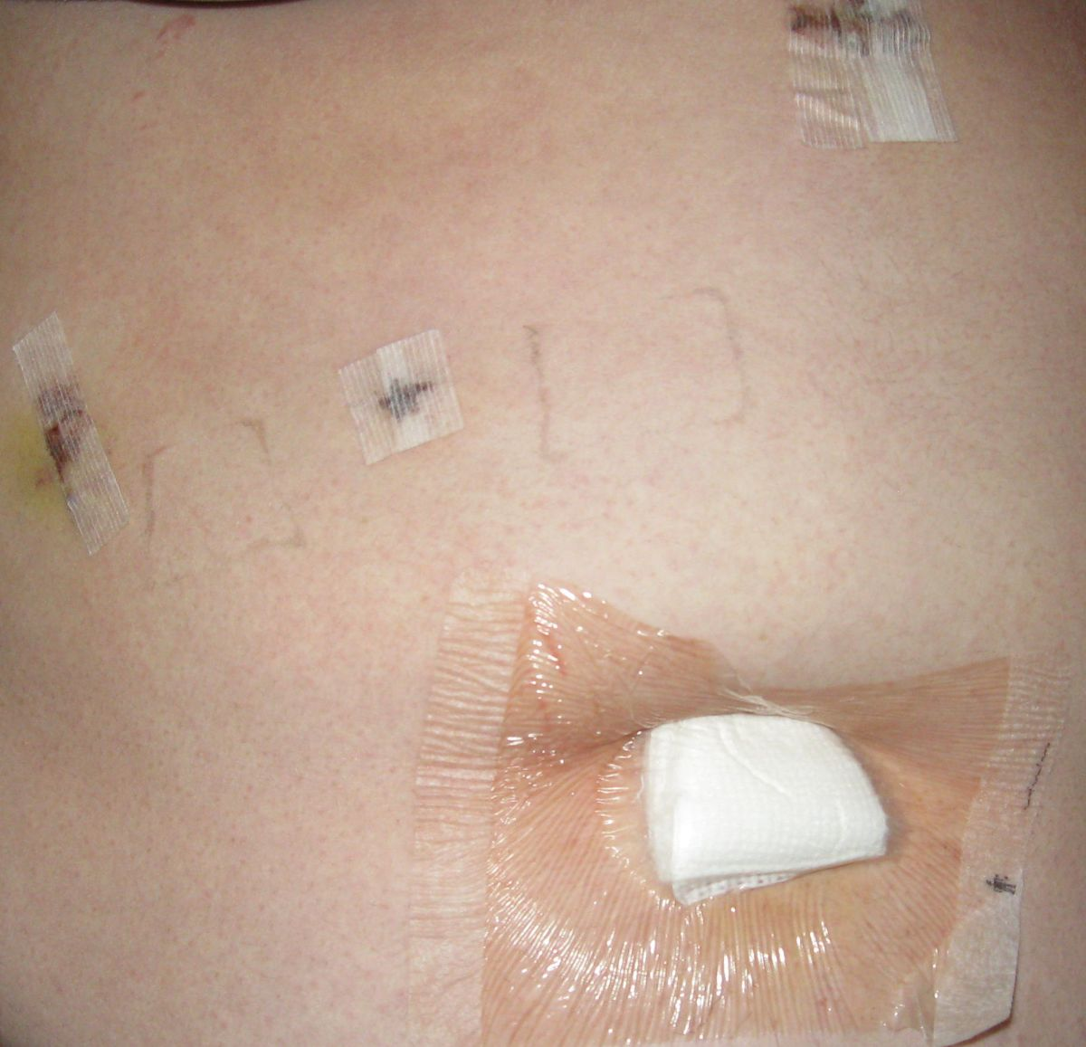 This is what my incisions looked like a few days after having my gallbladder removed.