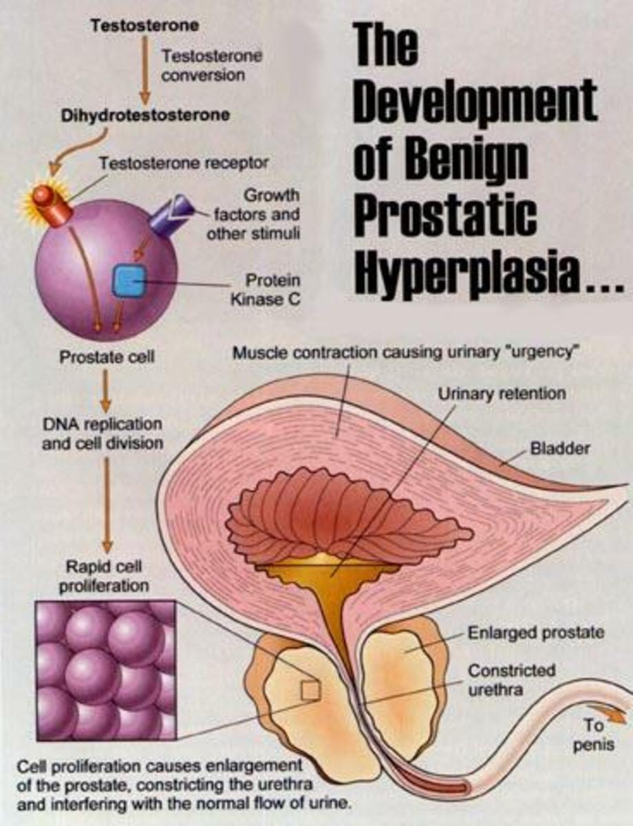 Beta Sitosterol Prostate Treatment for Benign Prostatic Hyperplasia (BPH)