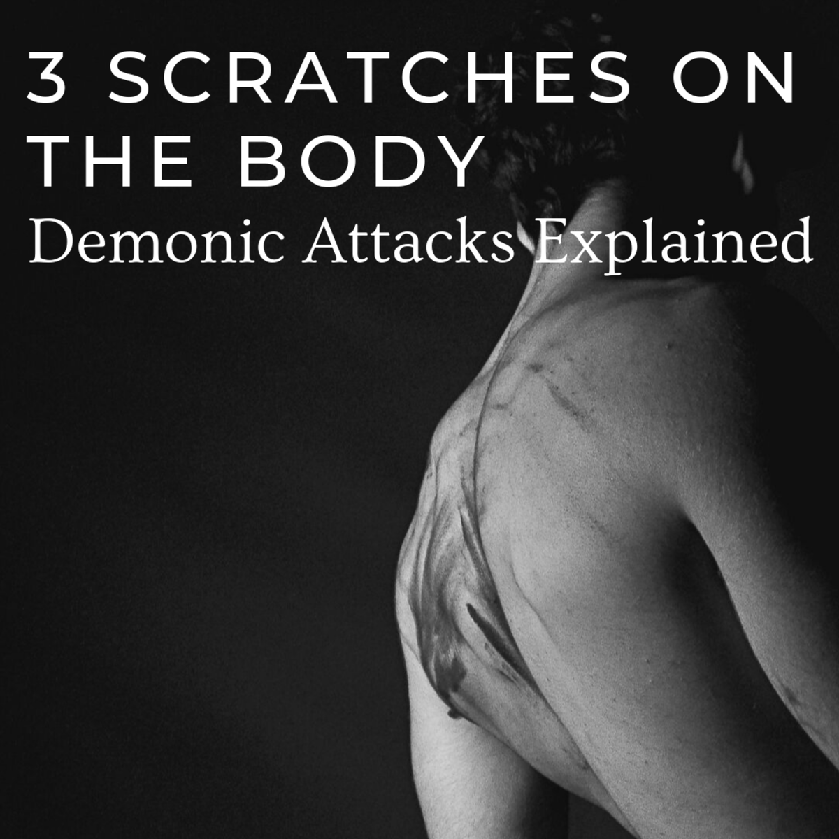 The Meaning of 3 Scratches on the Body